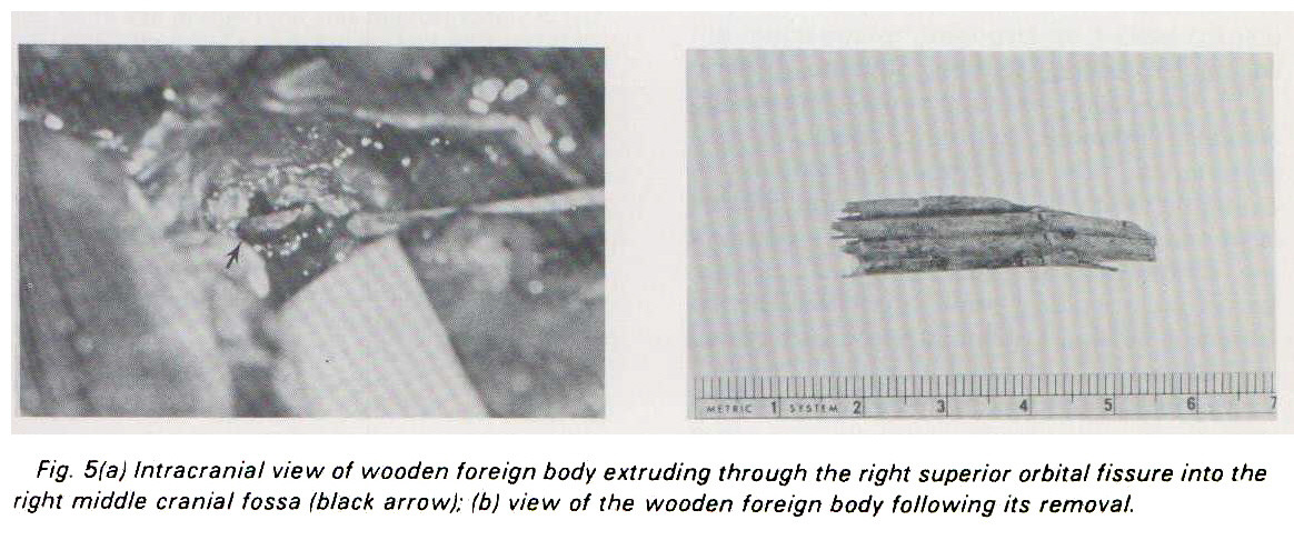 Fig. 5(a) Intracranial view of wooden foreign body extruding through the right superior orbital fissure into the right middle cranial fossa (black arrow); (b) view of the wooden foreign body following its removal.