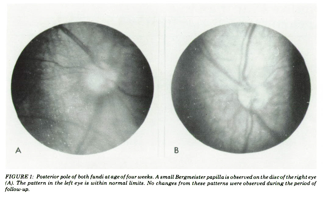 FIGURE 1: Posterior pole of both fundi at age of four weeks. A small Bergmeister papilla is observed on the disc of the right eye (A). The pattern in the left eye is within normal limits. No changes from these patterns were observed during the period of follow-up.