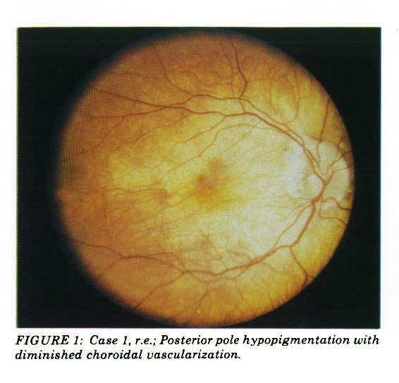 FIGURE 1: Case 1, r.e.; Posterior pole hypopigmentation with diminished choroidal vascularization.