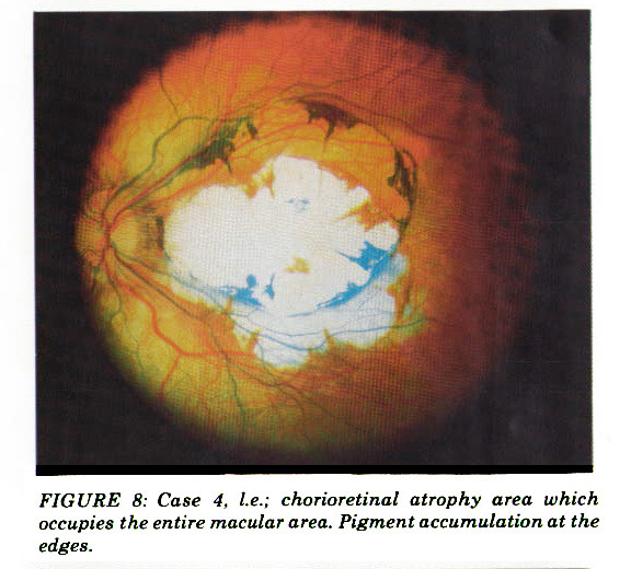 FIGURE 8: Case 4, I.e.; chorioretinal atrophy area which occupies the entire macular area. Pigment accumulation at the edges.