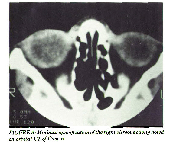 FIGURE 9: Minimal opacification of the right vitreous cavity noted on orbital CT of Case 5.