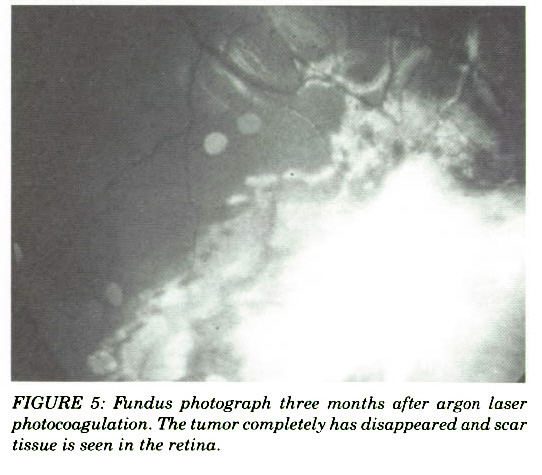 FIGURE 5: Fiindus photograph three months after argon laser photocoagulation. The iunior completely has disappeared and scar tissue is seen in the retina.