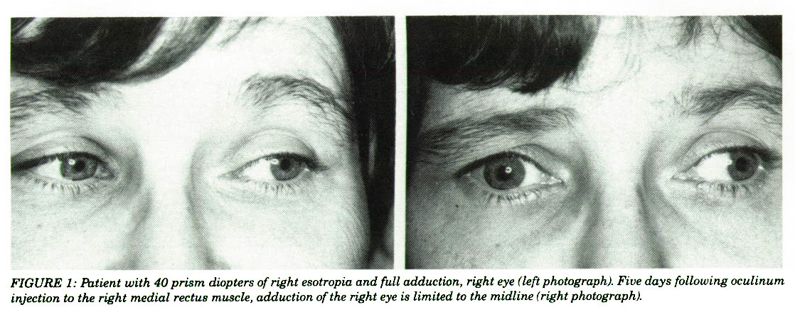 FIGURE 1: Patient with 40 prism diopters of right esotropia and full adduction, right eye (left photograph). Five days following oculinum injection to the right medial reclus muscle, adduction of the right eye is limited to the midline (right photograph).
