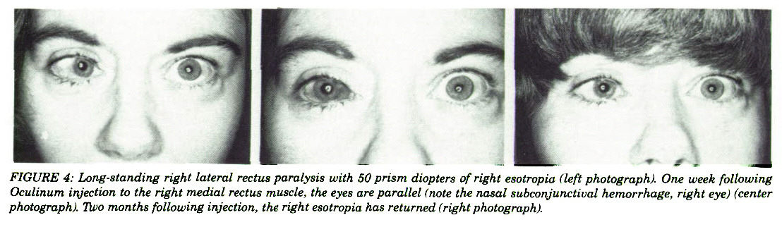 FIGURE 4: Long-standing right lateral rectus paralysis with SO prism diopters of right esotropia tieft photograph). One week following Oculinum injection to the right medial rectus muscle, the eyes are parallel !note the nasal subconjunctiua! hemorrhage, right eye) (center photograph). Tiiio months following injection, the right esotropia has returned (right photograph).