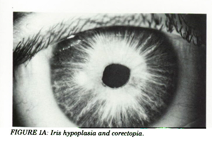 FIGURE IA: Iris hypoplasia and corectopia.