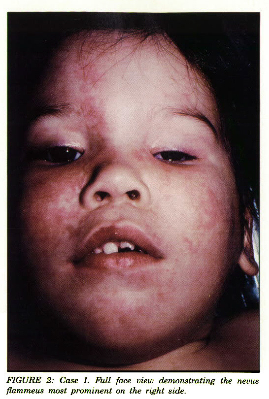 FIGURE 2: Case 1. Full face view demonstrating the nevus flammeus most prominent on the right side.