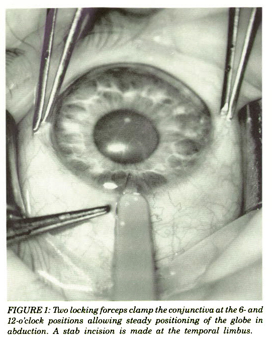 FIGURE 1: Two locking forceps clamp the conjunctiva at the 6- and 12-o'clock positions allowing steady positioning of the globe in abduction. A stab incision is made at the temporal limbus.