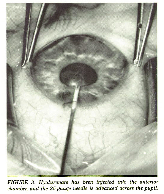 FIGURE 3: Hyaluronate has been injected into the chamber, and the 25-gauge needle is advanced across the pupil.