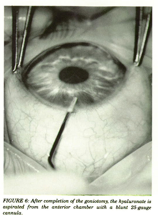 FIGURE 6: After completion of the goniotomy, the hyaluronate is aspirated from the anterior chamber with a blunt 25-gauge cannula.