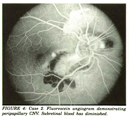 FIGURE 4: Case 2. Fluorescein angiogram demonstrating peripapillary CNV. Subretinal blood has diminished.