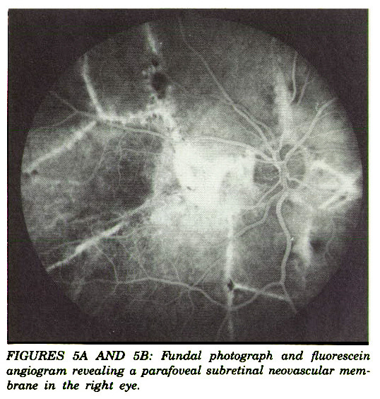 FIGURES 5A AND 5B: Fundal photograph and fluorescein angiogram revealing a parafoveal subretinal neovascular membrane in the right eye.
