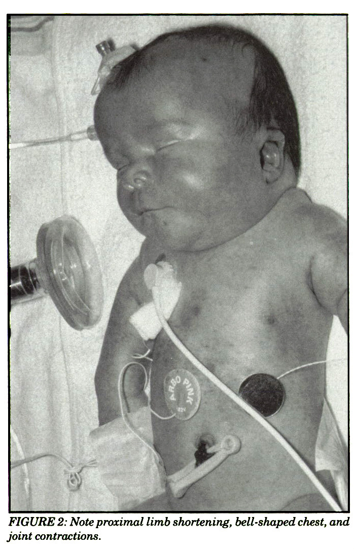 FIGURE 2: Note proximal limb shortening, bell-shaped chest, and joint contractions.