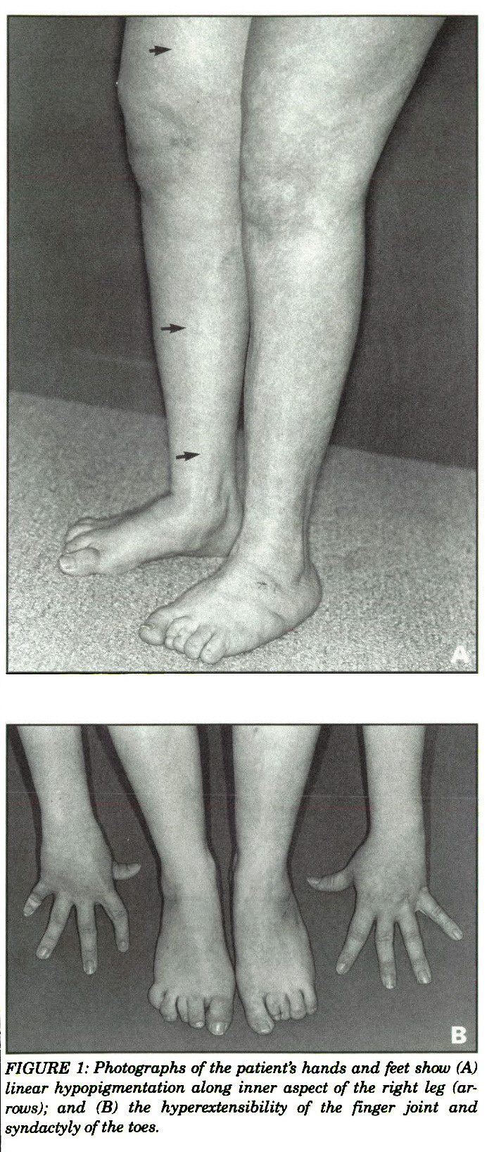 FIGURE 1: Photographs of the patient's hands and feet show (A) linear hypopigmentation along inner aspect of the right leg (arrows); and (B) the hyperextensibility of the finger joint and syndactyly of the toes.