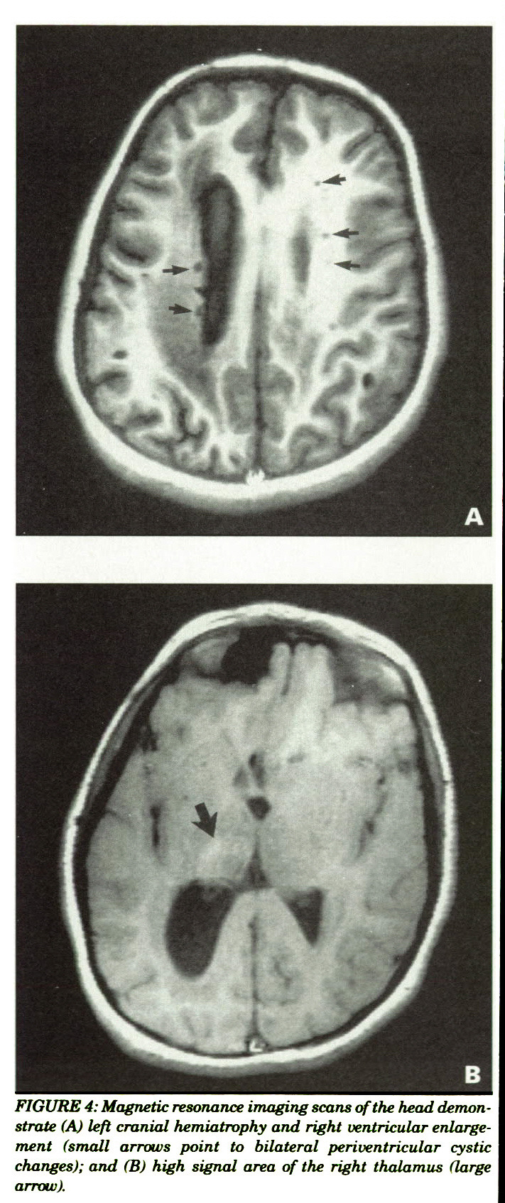 FIGURE 4: Magnetic resonance imaging scans of the head demonstrate (A) left cranial hemiatrophy and right ventricular enlargement (small arrows point to bilateral periventricular cystic changes); and (B) high signal area of the right thalamus (large arrow).