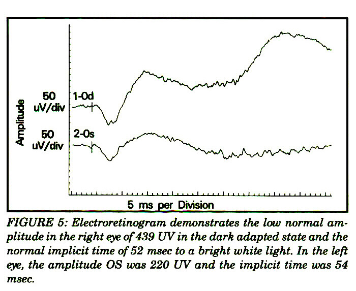 FIGURE 5: Electroretinogram demonstrates the low normal amplitude in the right eye of 439 UV in the dark adapted state and the normal implicit time of 52 msec to a bright white light. In the left eye, the amplitude OS was 220 UV and the implicit time was 54 msec.