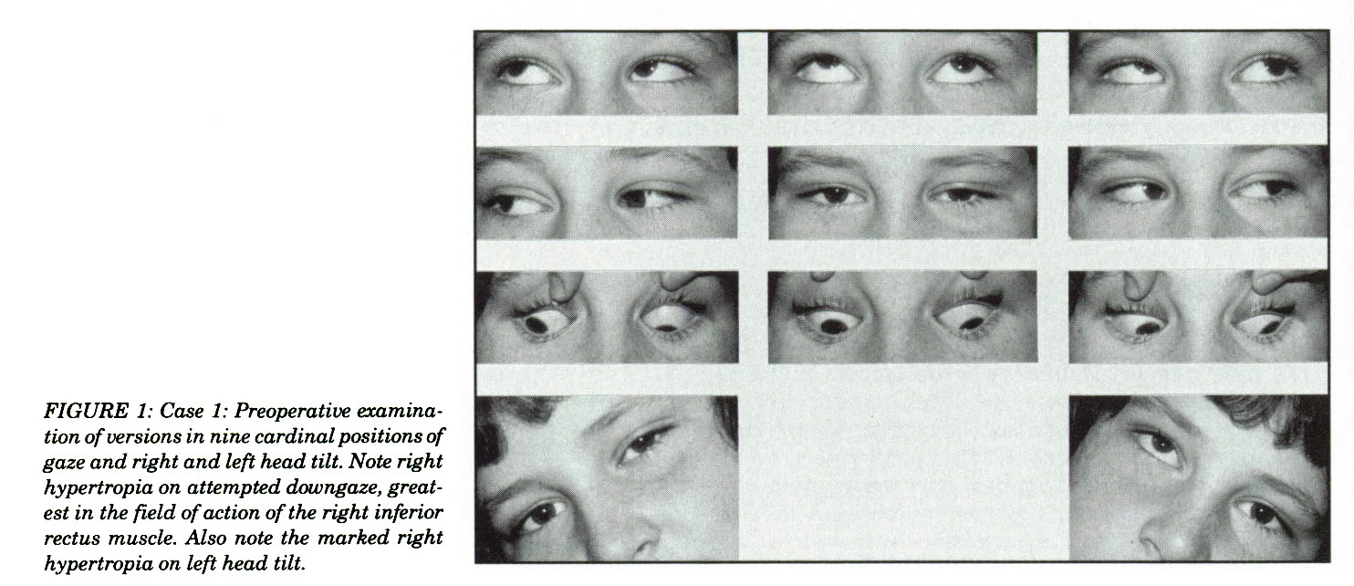 FIGURE 1: Case 1: Preoperative examination of versions in nine cardinal positions of gaze and right and left head tilt. Note right hypertropia on attempted downgaze, greatest in the field of action of the right inferior rectus muscle. Also note the marked right hypertropia on left head tilt.