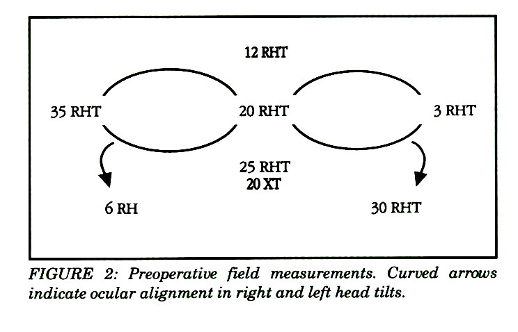 FIGURE 2: Preoperative field measurements. Curved arrows indicate ocular alignment in right and left head tilts.