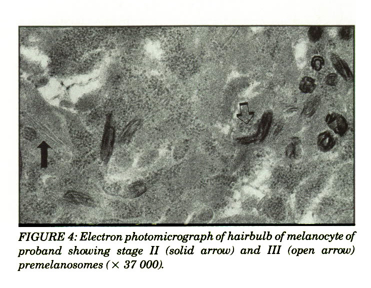FIGURE 4: Electron photomicrograph ofhairbulb of melanocyte of proband showing stage II (solid arrow) and III (open arrow) premelanosomes (× 37 000).