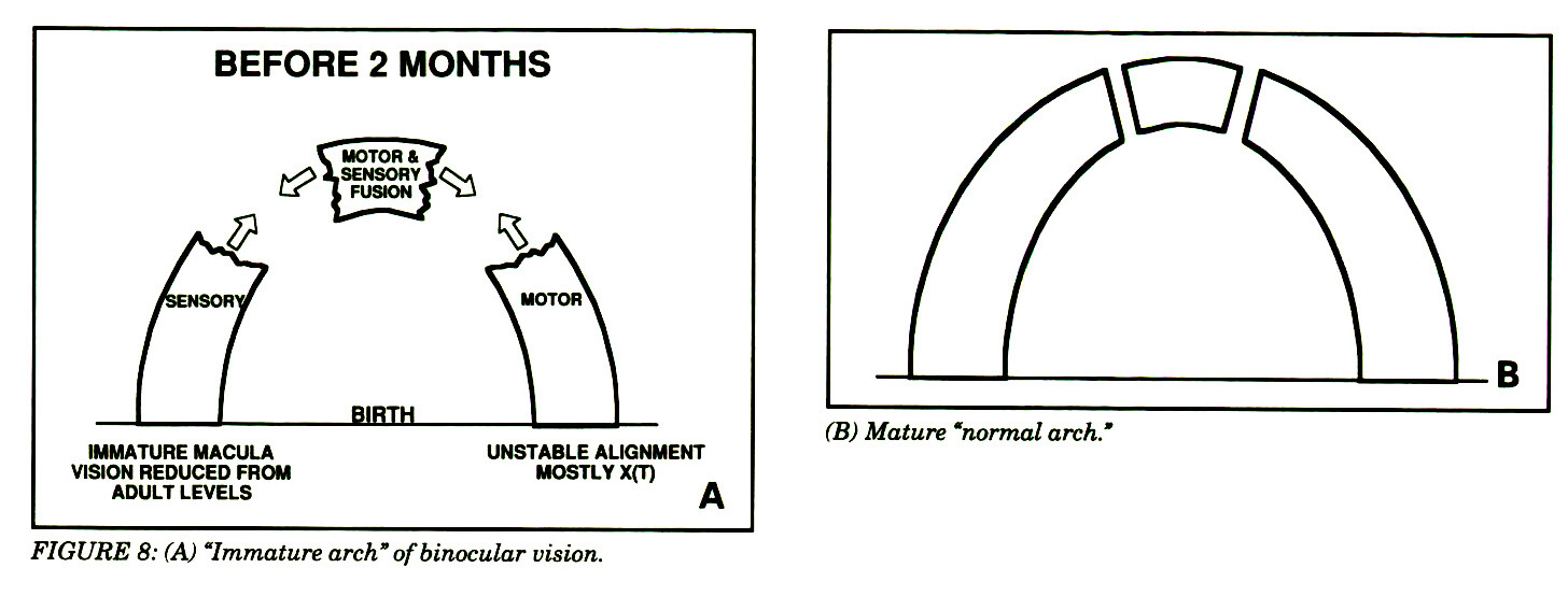 19th Annual Frank Costenbader Lecture The Origins Of Congenital 2nd Generation Firebird 8 Track Wiring Diagram Figure A Immature Arch Binocular