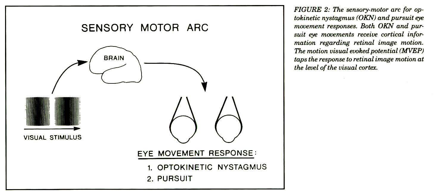 FIGURE 2: The sensory-motor arc for optokinetic nystagmus (OKN) and pursuit eye movement responses. Both OKN and pursuit eye movements receive cortical information regarding retinal image motion. The motion visual evoked potential (MVEP) taps the response to retinal image motion at the level of the visual cortex.