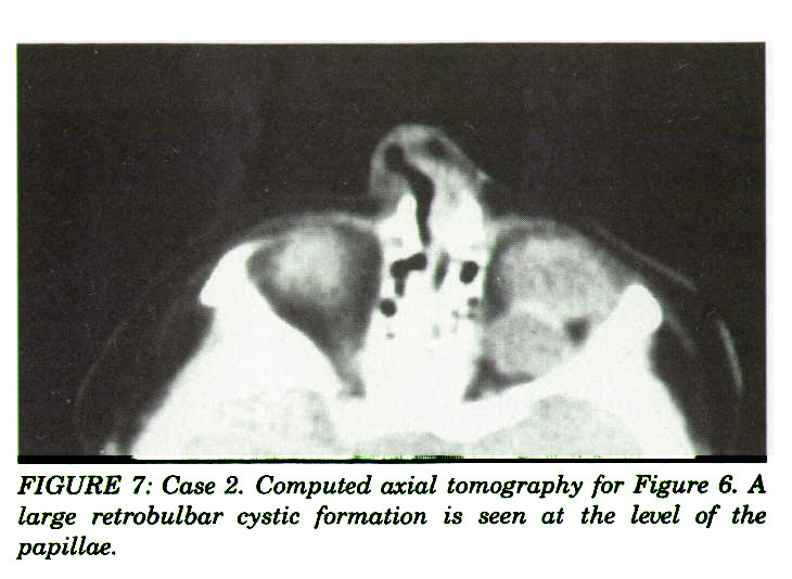 FIGURE 7: Case 2. Computed axial tomography for Figure 6. A large retrobulbar cystic formation is seen at the level of the papillae.