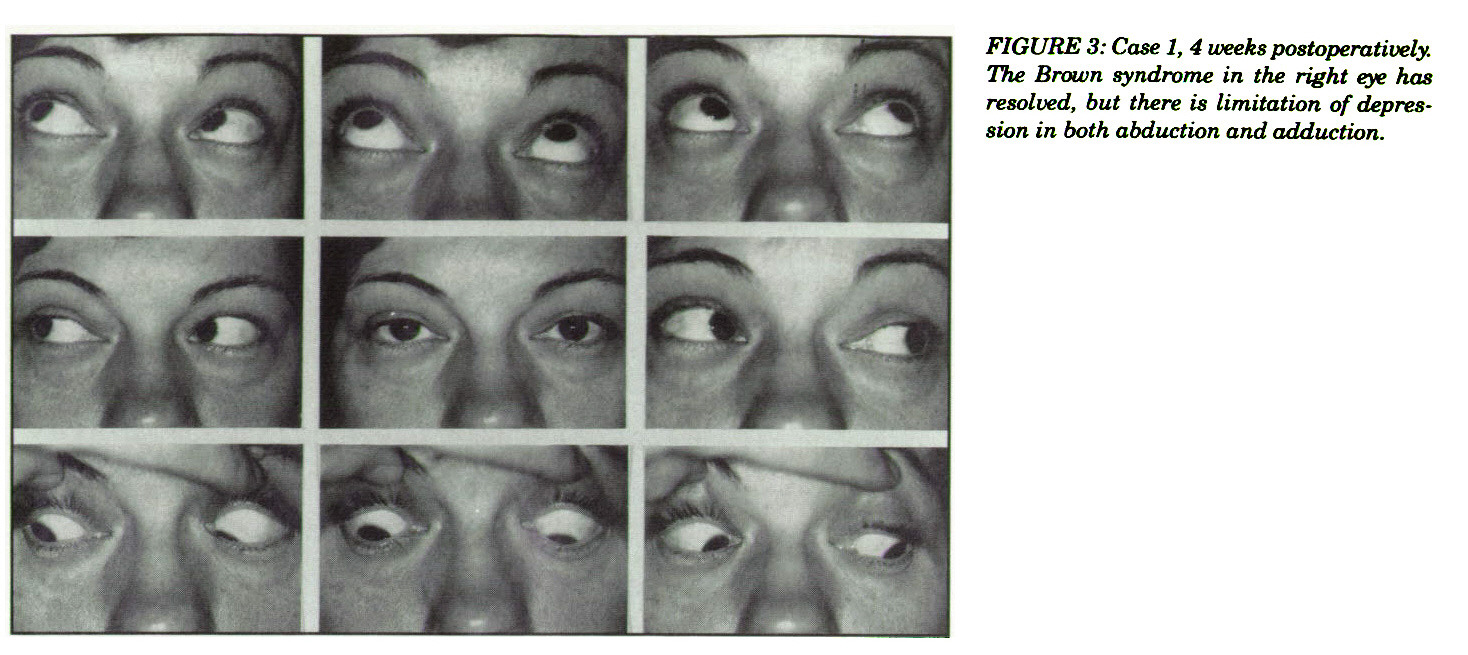 FIGURE 3: Case 1, 4 weeks postoperatively. The Brown syndrome in the right eye has resolved, but there is limitation of depression in both abduction and adduction.