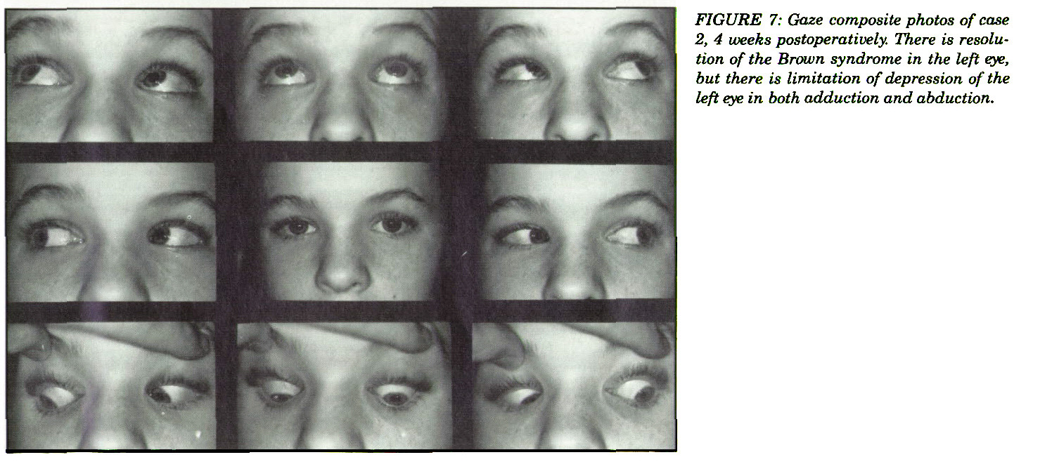 FIGURE 7: Gaze composite photos of case 2, 4 weeks postoperatively. There is resolution of the Brown syndrome in the left eye, but there is limitation of depression of the left eye in both adduction and abduction.