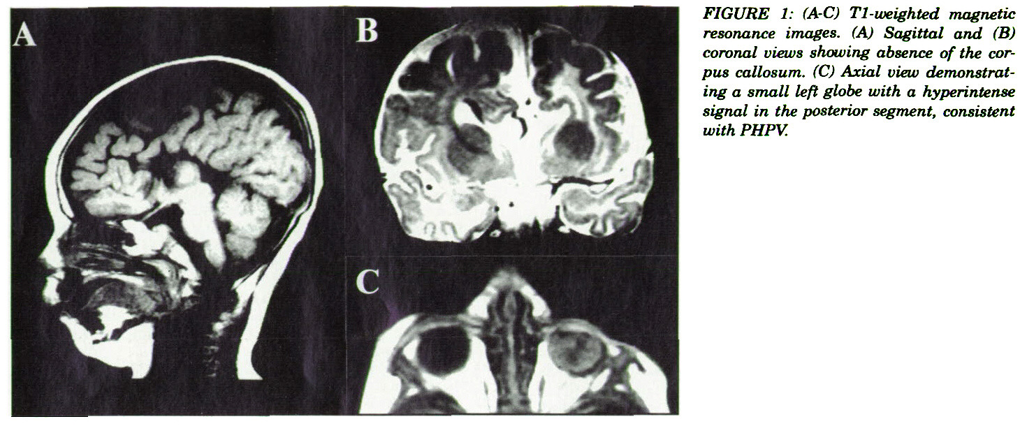 FIGURE 1: (A-C) T1-weighted magnetic resonance images. (A) Sagittal and (B) coronal views showing absence of the corpus callosum. (C) Axial view demonstrating a small left globe with a hyperintense signal in the posterior segment, consistent with PHPV.
