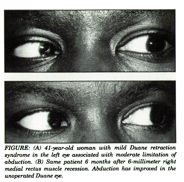 FIGURE: (A) 41-year-old woman with mild Duane retraction syndrome in the left eye associated with moderate limitation of abduction. (B) Same patient 6 months after 6-millimeter right medial rectus muscle recession. Abduction has improved in the unoperated Duane eye.