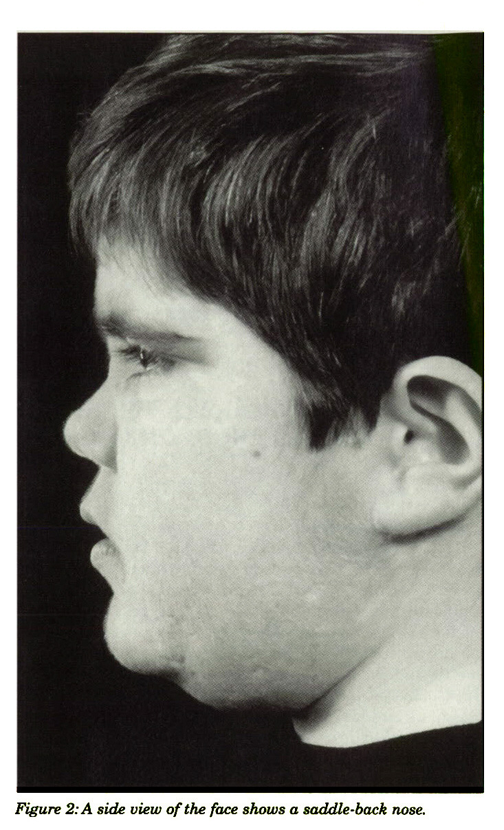 Figure 2: A side view of the face shows a saddle-back nose.
