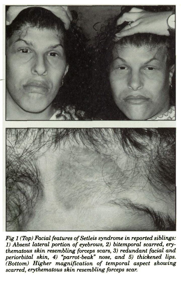 "Fig 1 (Top) Facial features ofSetleis syndrome in reported siblings: 1) Absent lateral portion of eyebrows, 2) bitemporal scarred, erythematotis skin resembling forceps scars, 3) redundant facial and periorbital skin, 4) ""parrot-beak"" nose, and 5) thickened lips. (Bottom) Higher magnification of temporal aspect showing scarred, erythematous skin resembling forceps scar."