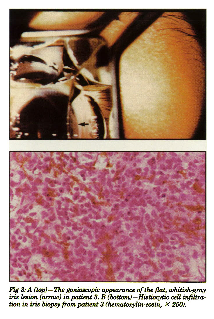 Fig 3: A (top) - The gonioscopic appearance of the flat, whitish-gray iris lesion (arrow) in patient 3. B (bottom) -Histiocytic cell infiltration in iris biopsy from patient 3 (hematoxylin-eosin, X 250).