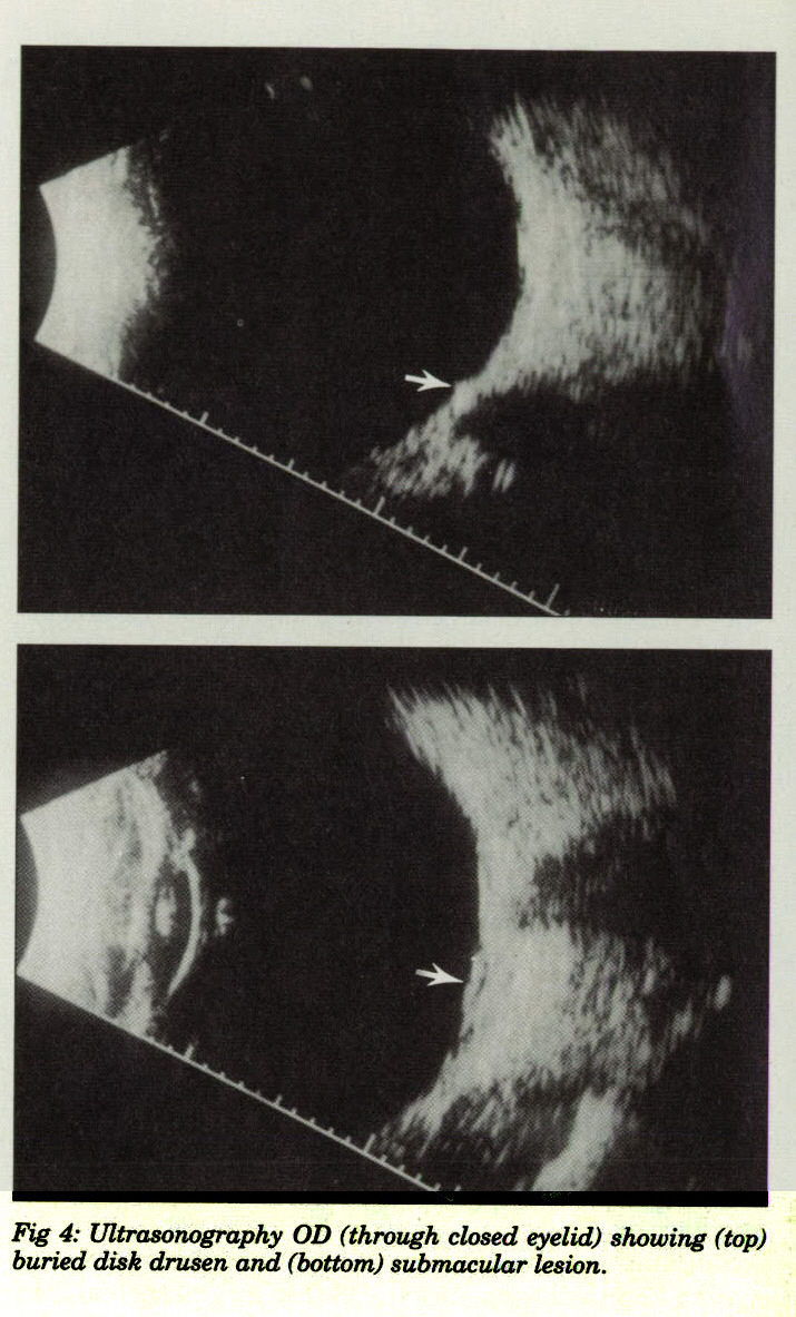 Fig 4: Ultrasonography OD (through closed eyelid) showing (top) buried disk drusen and (bottom) submacular lesion.