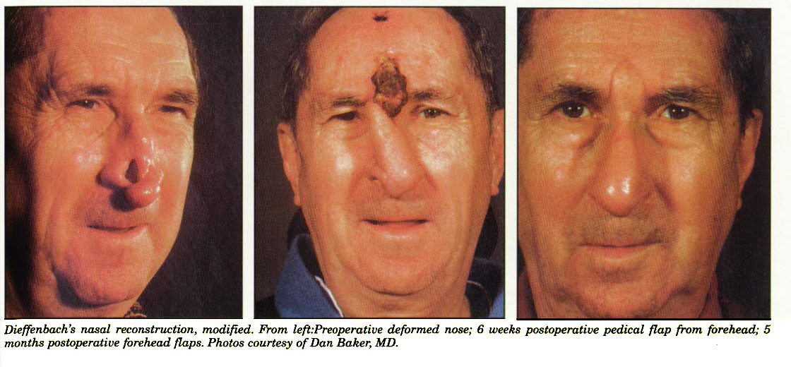 Dieffenbach's nasal reconstruction, modified. From left:Preoperative deformed nose; 6 weeks postoperative pedical flap from forehead; 5 months postoperative forehead flaps. Photos courtesy of Dan Baker, MD.