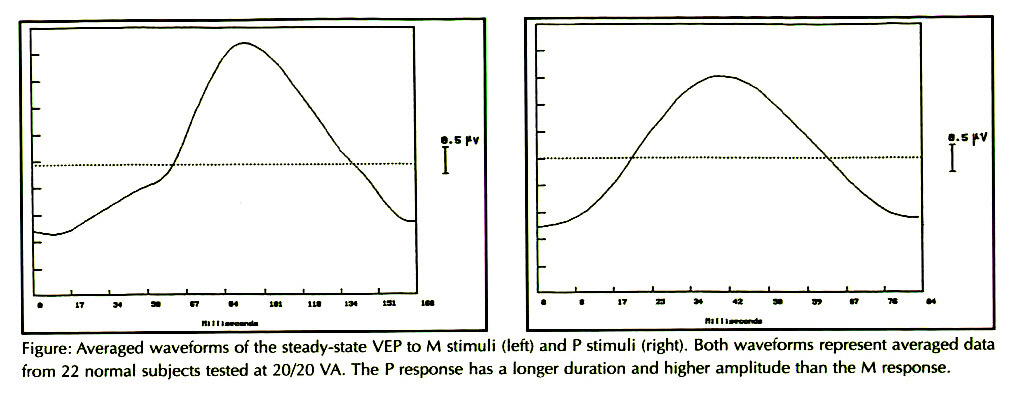 Figure: Averaged waveforms of the steady-state VEP to M stimuli (left) and P stimuli (right). Both waveforms represent averaged data from 22 normal subjects tested at 20/20 VA. The P response has a longer duration and higher amplitude than the M response.