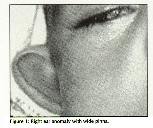 Figure 1 : Right ear anomaly with wide pinna.