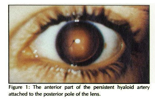 Figure 1 : The anterior part of the persistent hyaloid artery attached to the posterior pole of the lens.