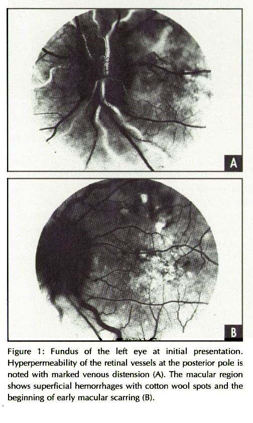 Figure 1 : Fundus of the left eye at initial presentation. Hyperpermeability of the retinal vessels at the posterior pole is noted with marked venous distension (A). The macular region shows superficial hemorrhages with cotton wool spots and the beginning of early macular scarring (B).
