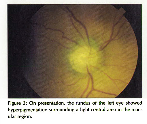 Figure 3: On presentation, the fundus of the left eye showed hyperpigmentation surrounding a light central area in the macular region.