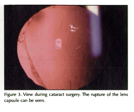 Figure 3. View during cataract surgery. The rupture of the lens capsule can be seen.