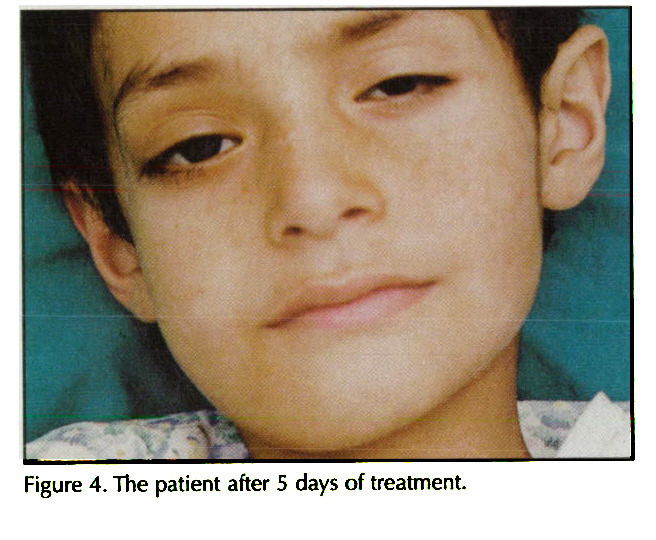 Figure 4. The patient after 5 days of treatment.