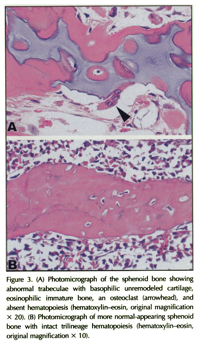 Figure 3. (A) Photomicrograph of the sphenoid bone showing abnormal trabeculae with basophilic unremodeled cartilage, eosinophilic immature bone, an osteoclast (anowhead), and absent hematopoiesis (hematoxylin-eosin, original magnification x 20). (B) Photomicrograph of more normal-appearing sphenoid bone with intact trilineage hematopoiesis (hematoxylin-eosin, original magnification x 10).