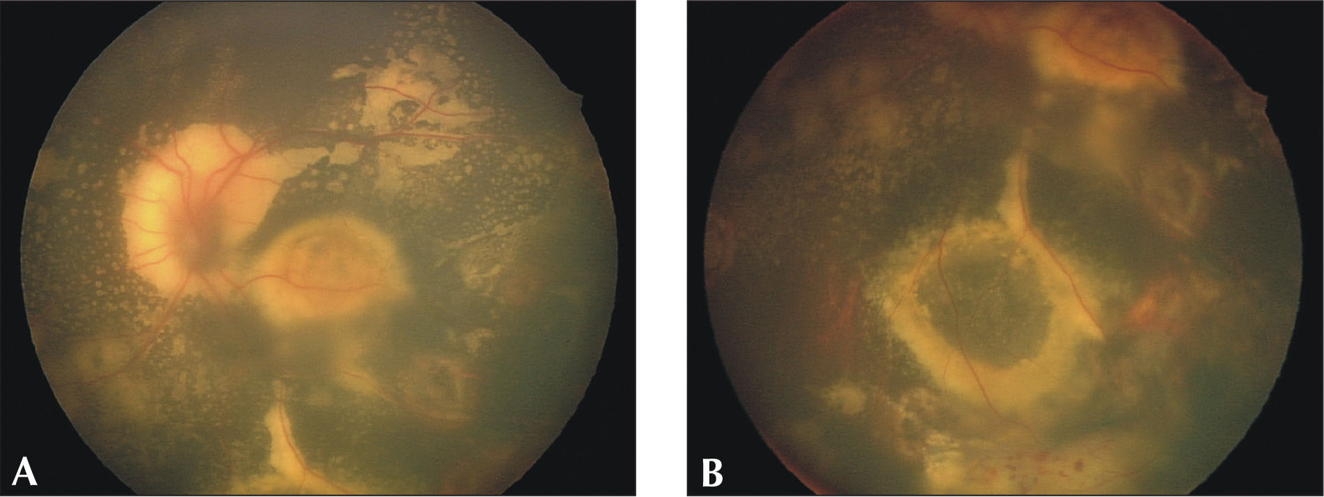 Six months after initial laser treatment, (A) the subretinal exudate is resolving and (B) the retinal macrocyst is consolidated.