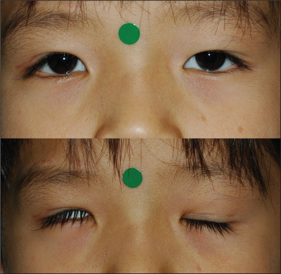 Lagophthalmos Measured Using Photographic Analysis. (top) Photograph of a Patient 6 Months After Frontalis Suspension Surgery on the Right Eye. (bottom) Lagophthalmos in the Right Eye with Intact Bell's Phenomenon.