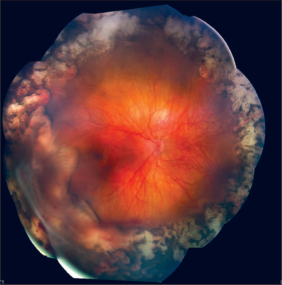 Progression to Stage 4b Retinopathy of Prematurity 2 Weeks After a Second Injection of Bevacizumab for Recurrent Stage 3+ Retinopathy of Prematurity.