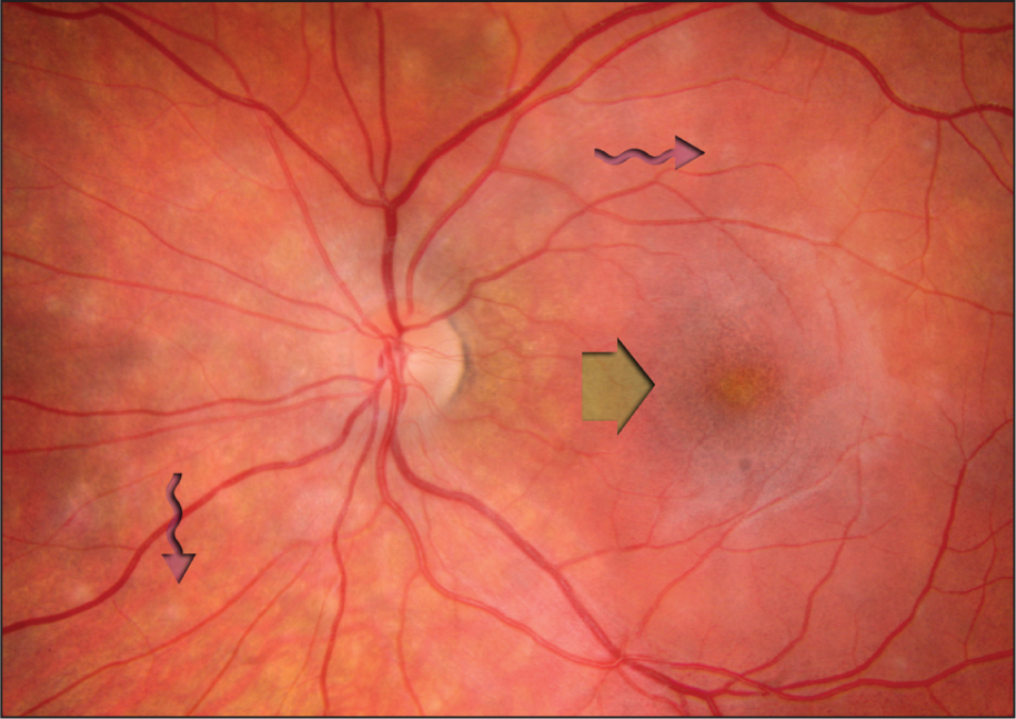 Fundus Photograph of the Left Eye Affected by Multiple Evanescent White Dot Syndrome. The Wavy Arrows Point to White Spots. The Straight Arrow Points to the Blunted Foveal Reflex.