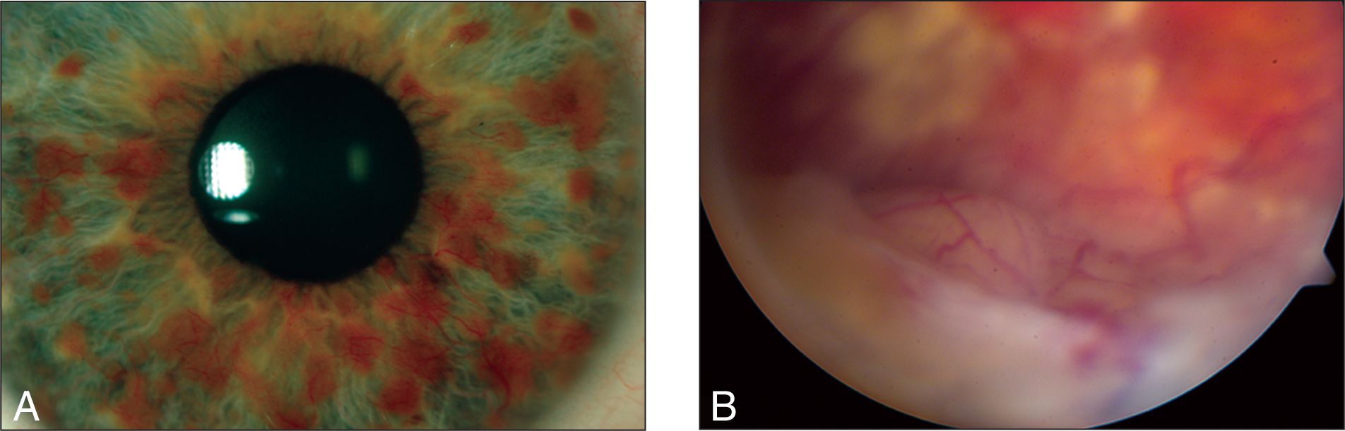(A) Slit-Lamp Photograph of the Right Eye at Presentation Showing Multiple Lisch Nodules and Florid Neovascularization of the Iris. (B) On Gonioscopic Examination, 360° Neovascularization of the Angle Is Seen. In the Inferior Fundus, There Is an Elevated Pink Vascular Mass with Surrounding Lipid Exudate, Consistent with Vasoproliferative Tumor.