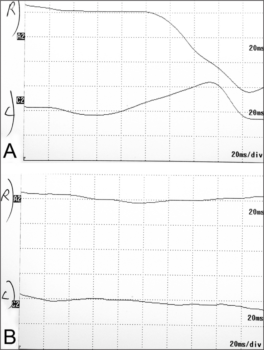 (A) Photopic and (B) Scotopic Electroretinography Performed at 34 Months of Follow-Up Shows that Electroretinography Was Extinguished in Both Eyes.