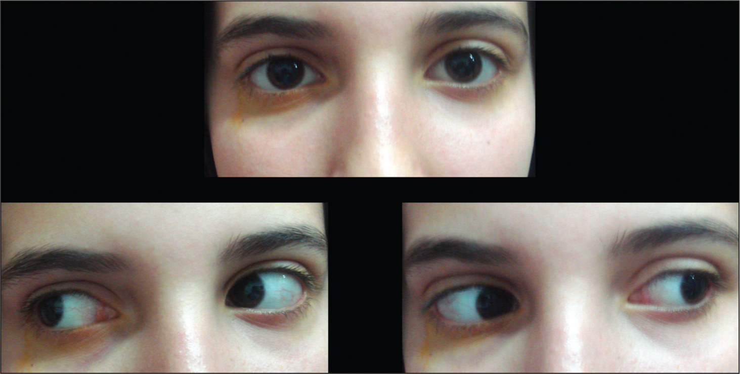 One Year After Carbon Monoxide Poisoning, Ocular Motility Is Normal.
