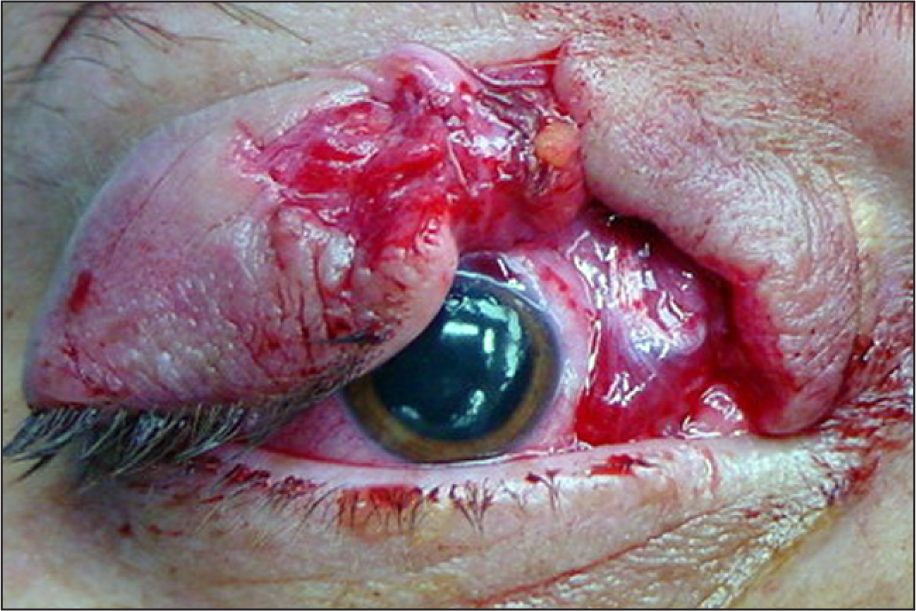 Clinical Photograph Showing Full-Thickness Laceration of the Right Upper Eyelid.
